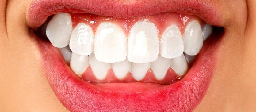 bruxismo o el problema de apretar los dientes
