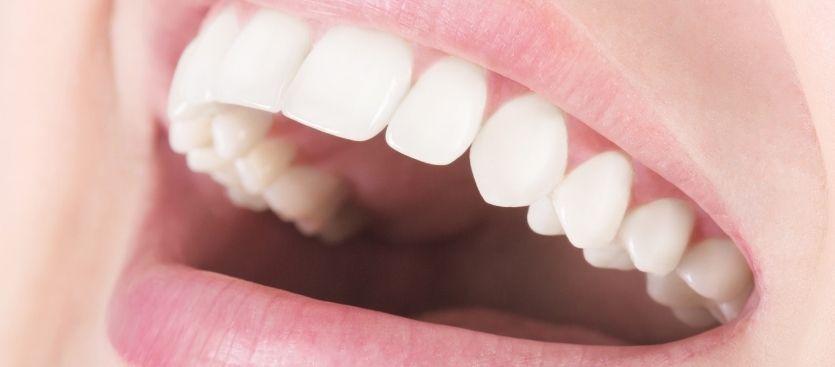 Conservación natural de los dientes